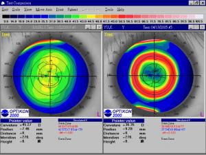 角膜矯視法